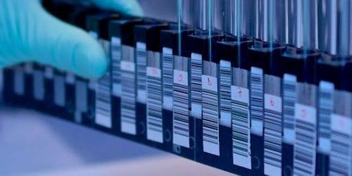 Mycoplasma contamination testing
